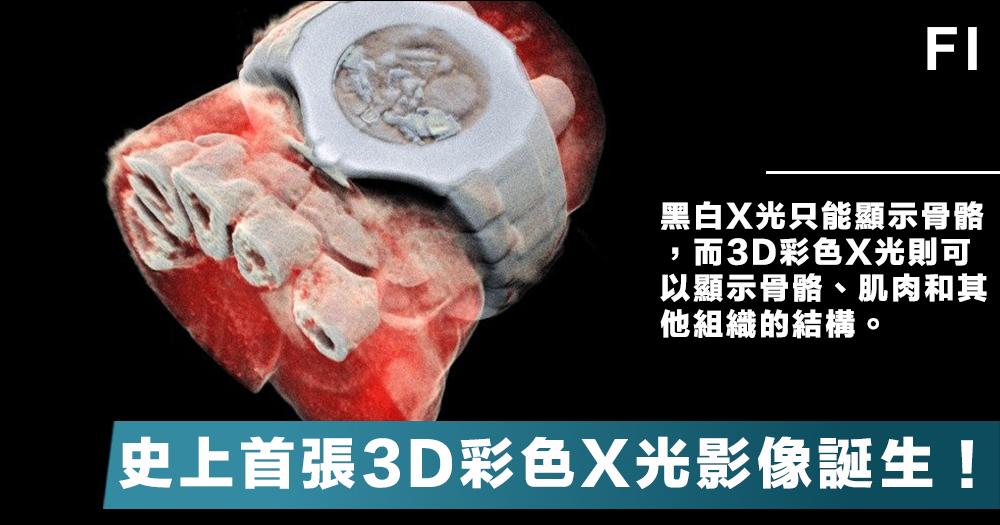 【醫學突破】借助尋找「上帝粒子」的粒子追蹤技術,人類史上首張3D全彩X光影像誕生了!